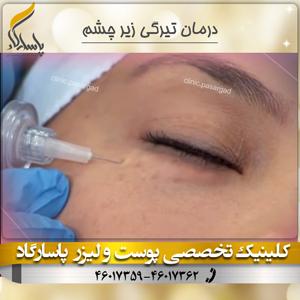 درمان-تیرگی-زیر-چشم